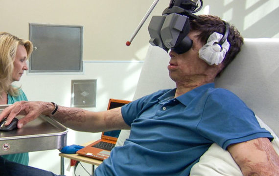 Virtual Reality Helps Patients To Cope With Pain