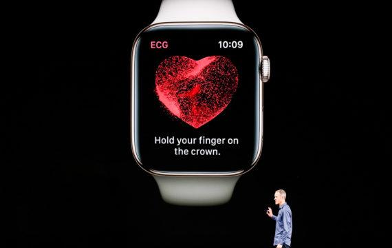 Apple ECG