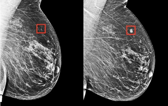 breast cancer , AI, Deep-Learning